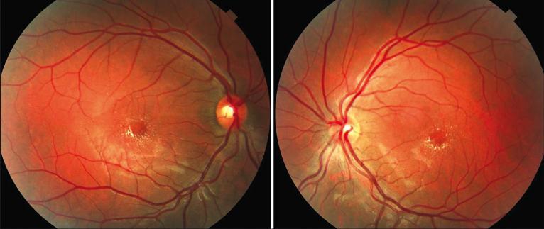 Exame de retinografia