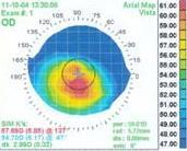 Exame para detectar ceratocone