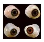 Cirurgia Plástica Ocular: Oculoplástica