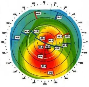 Topografia de Córnea - Estuda a superfície da córnea