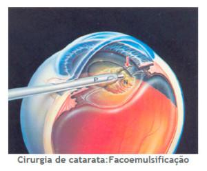 Cirurgia Catarata
