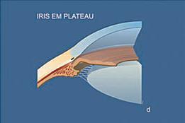Gonioscopia - exame que avalia o ângulo da câmara anterior