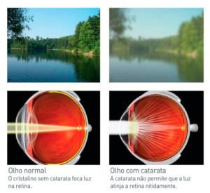 Olho Oftalmologia