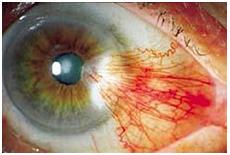 Pterígio - Diagnóstico e Tratamento