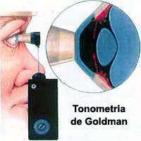 Tonometria - Medida da Pressão Intra-Ocular (PIO)